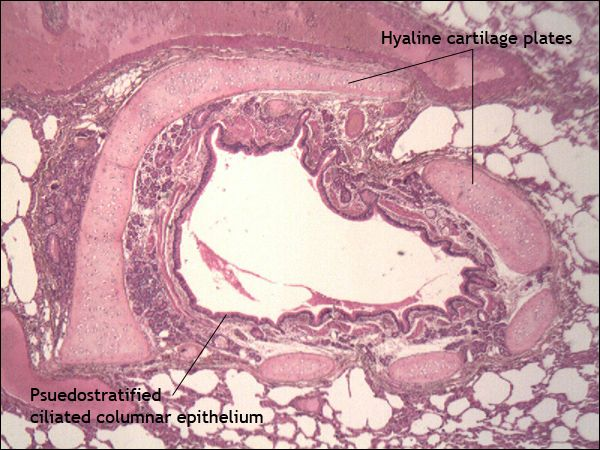 Hyaline cartilage plates and pseudostratified ciliated columnar epithelium