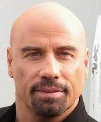 bald or balding - Google Search