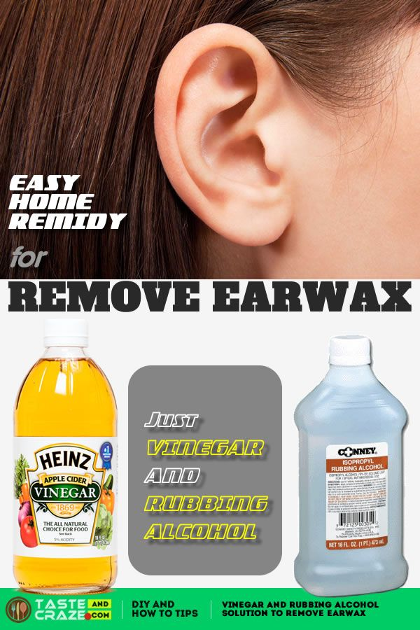 Vinegar and Rubbing Alcohol solution to Remove Earwax