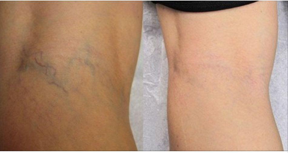 Artrite dores no corpo inteiro