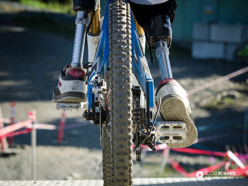 AWESOME!  Adolfo Almarza: Be Determined --- Adolfo Almarza of Chile....double amputee Pro Downhill Rider