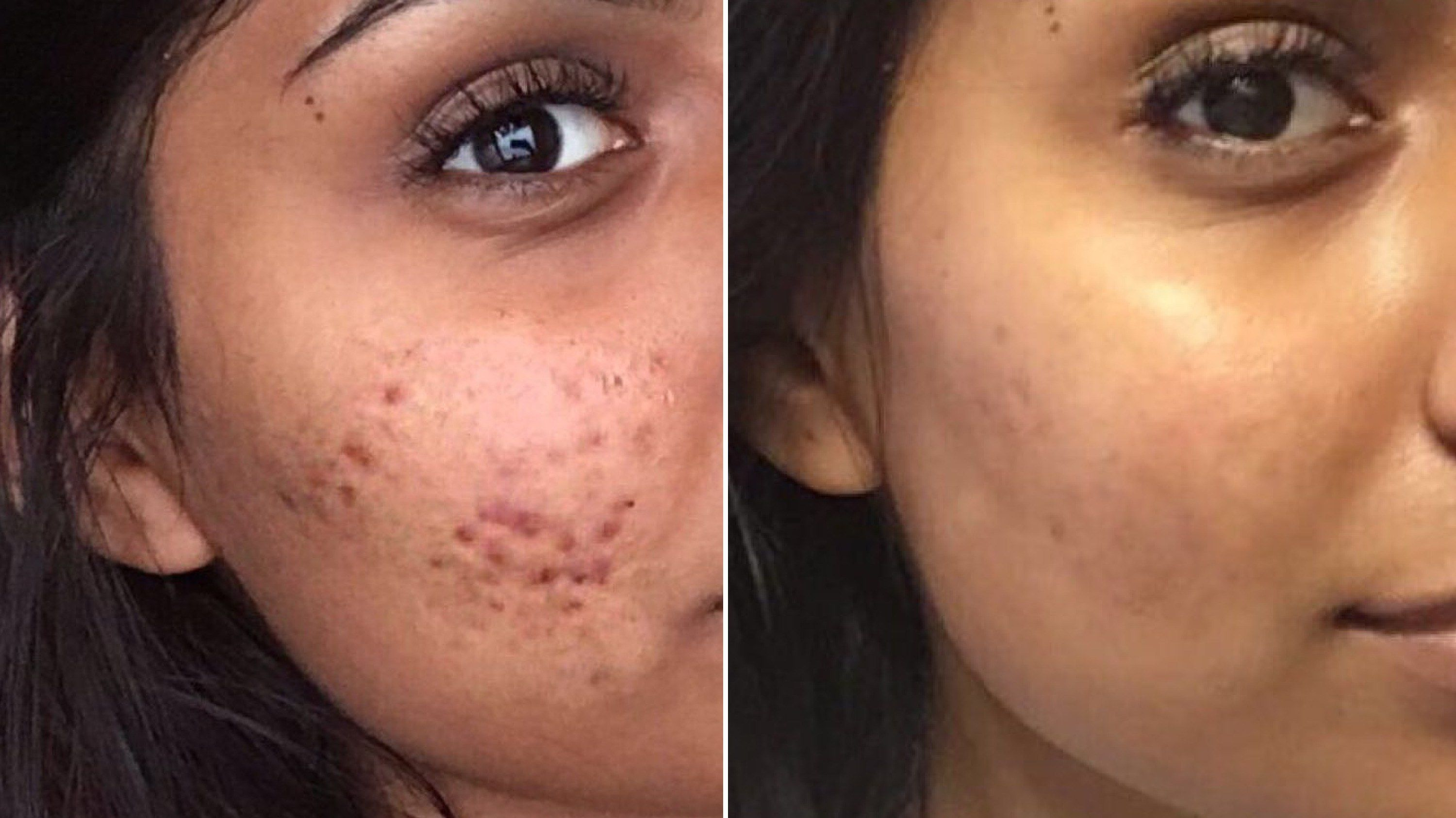 Here's Why This Woman's Cystic Acne Routine Is SO Controversial -   6 skin care 20s makeup artists ideas