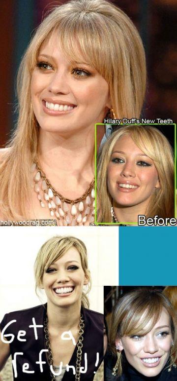 Celebrity plastic surgery transformations - Wonderwall.com