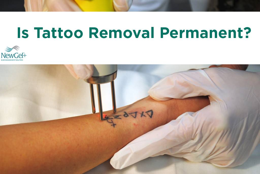 Is tattoo removal permanent tattoo removal how to
