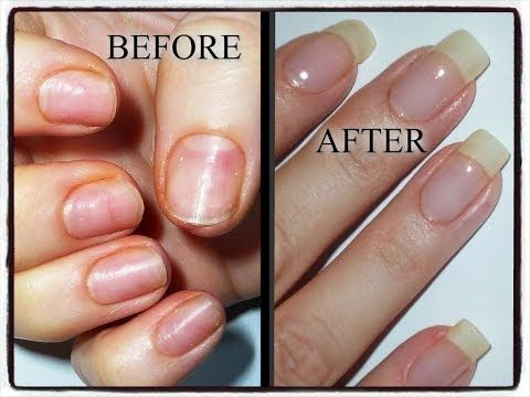 Video Tutorial Natural Nail Recovery And Repair Process After Years Worth Of Acrylic Gel Damage