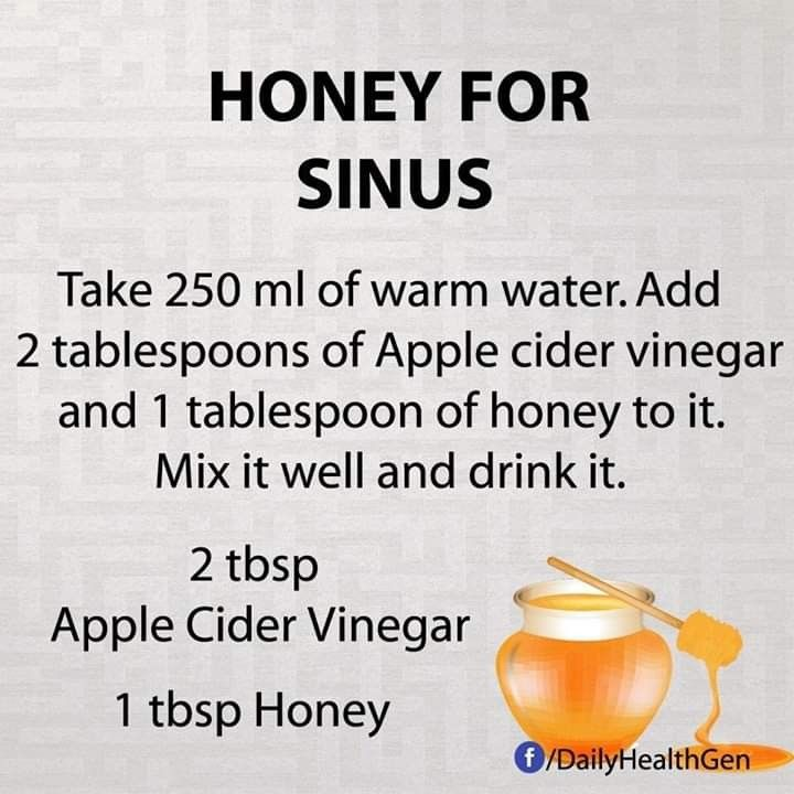 Pin by ruthie hudson on health sinusitis home remedies