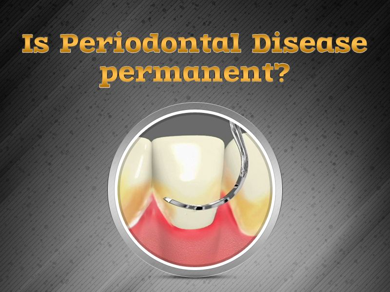 Gingivitis, being a reversible condition, will restore