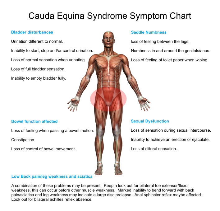 Herniated Disc Sciatica | Cauda equina syndrome, Cauda equina and ...