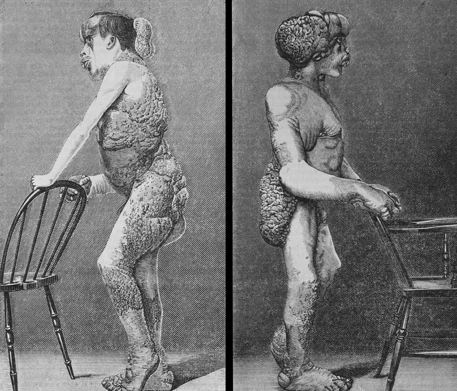 Standing profile engravings of Joseph Merrick were published in the British Medical Journal in 1886.