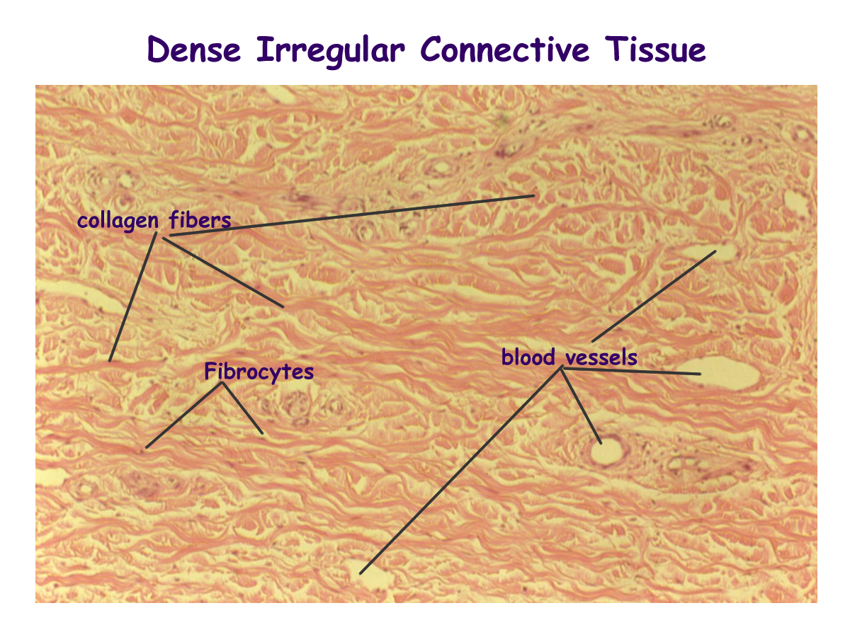 dense irregular connective tissue labeled - Google Search ...