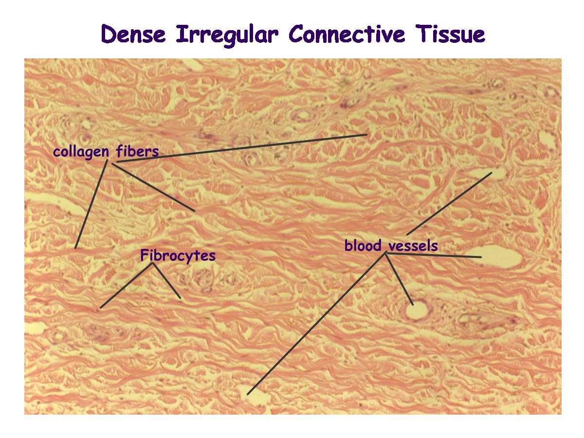 dense irregular connective tissue labeled - google search | anatomy