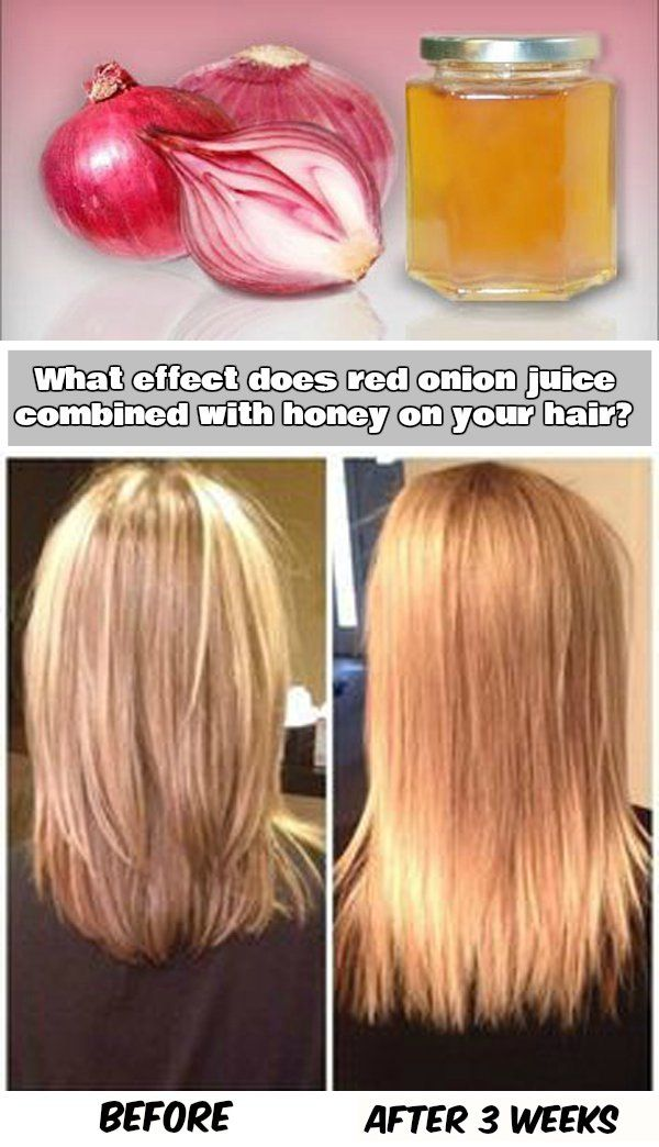 Три волоса из луковицы