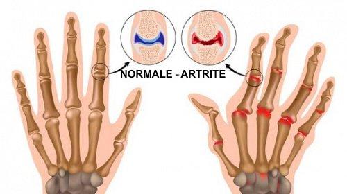 5 curiosità sull'artrite che forse non conoscete