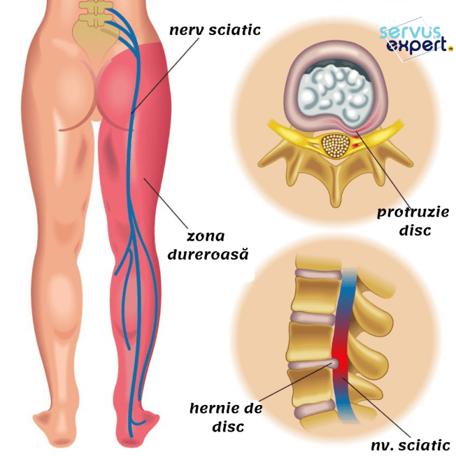 articulațiile doare durerile întregului corp exacerbarea artrozei articulațiilor