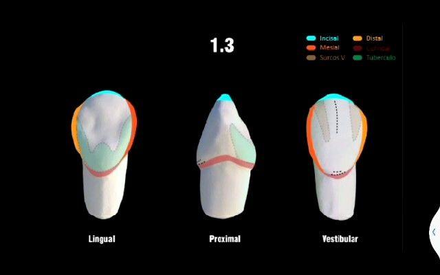 Lateral | Anatomía | Pinterest | Anatomía dental, Dental y Anatomía