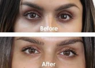 Natural Treatment Of Dark Circles Under The Eyes - healthbeauty4usa.com #darkcircle