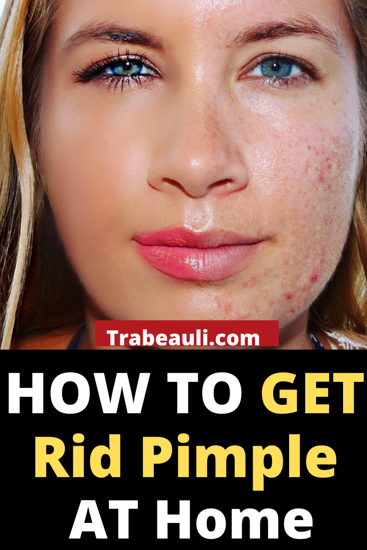 fabac093dd243a393e4cbdb8135158c4 - How To Get Rid Of Pimple Near Lip Fast