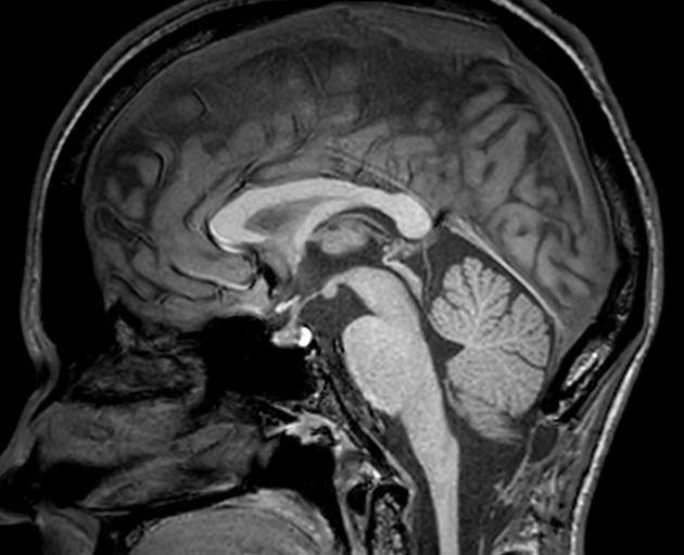 Sagittal Midline Of The Brain Normal Anatomy Radiology Case