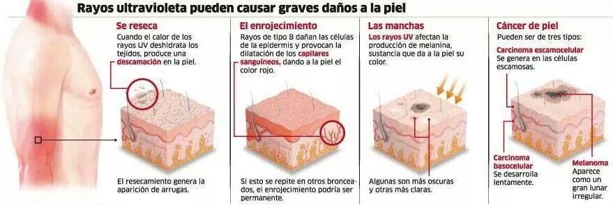 Efectos de los rayos ultravioletas en la piel.