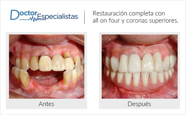 Pacientes Antes Y Despues Clinica Dental En 2020 Clinica Dental Dental Limpieza Dental