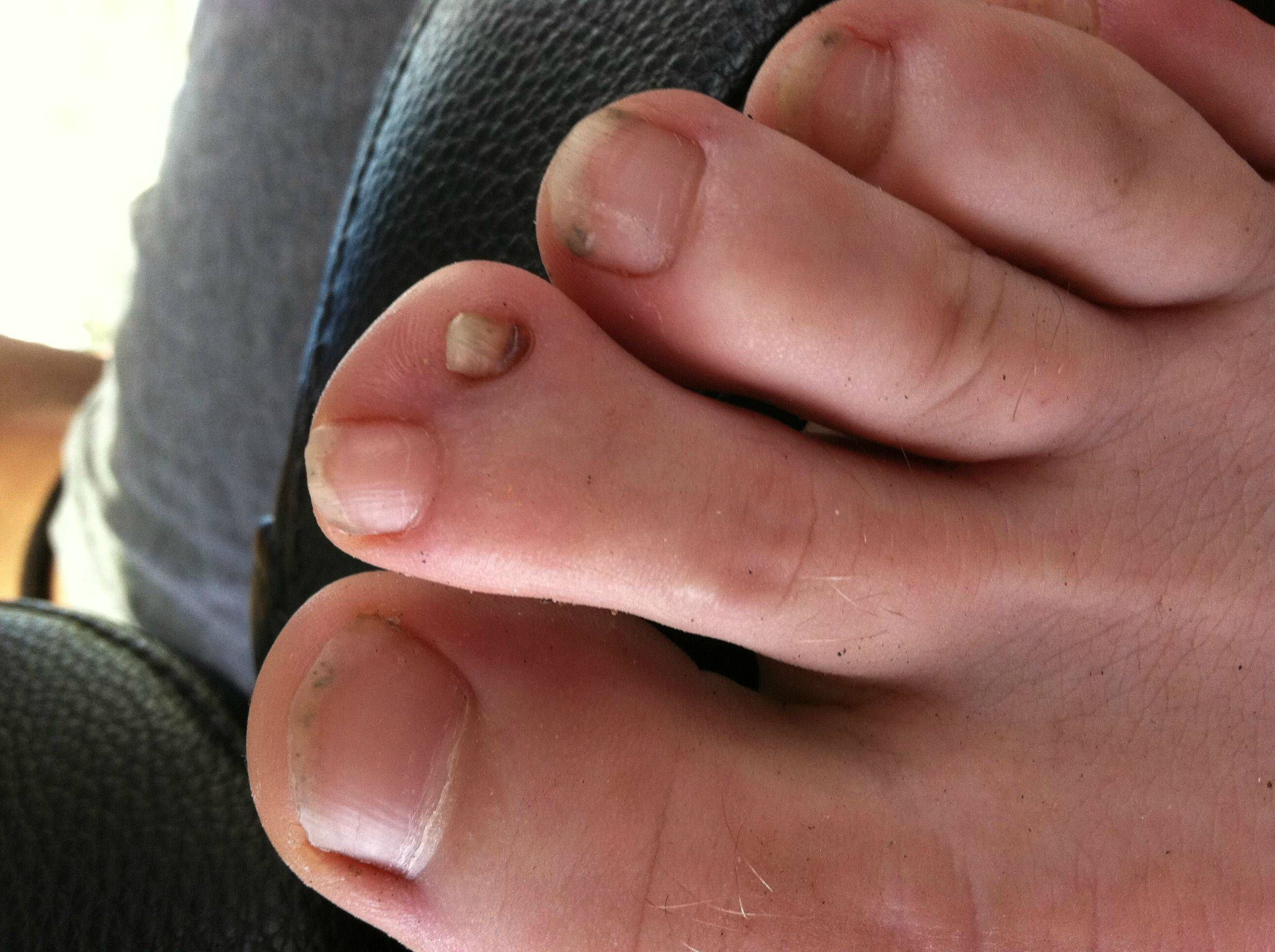 So I recently discovered my friend has two toenails on one toe