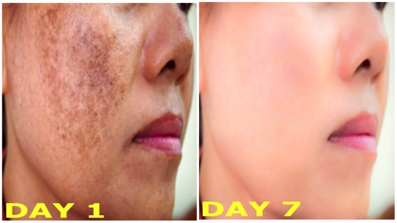 How To Remove Pigmentation Blemishes Dark Spots From Face Permanently Dark Spots On Face Face Treatment Dark Spot Remover For Face