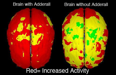 Your Brain On Adderall Cognitive Enhancement Creative