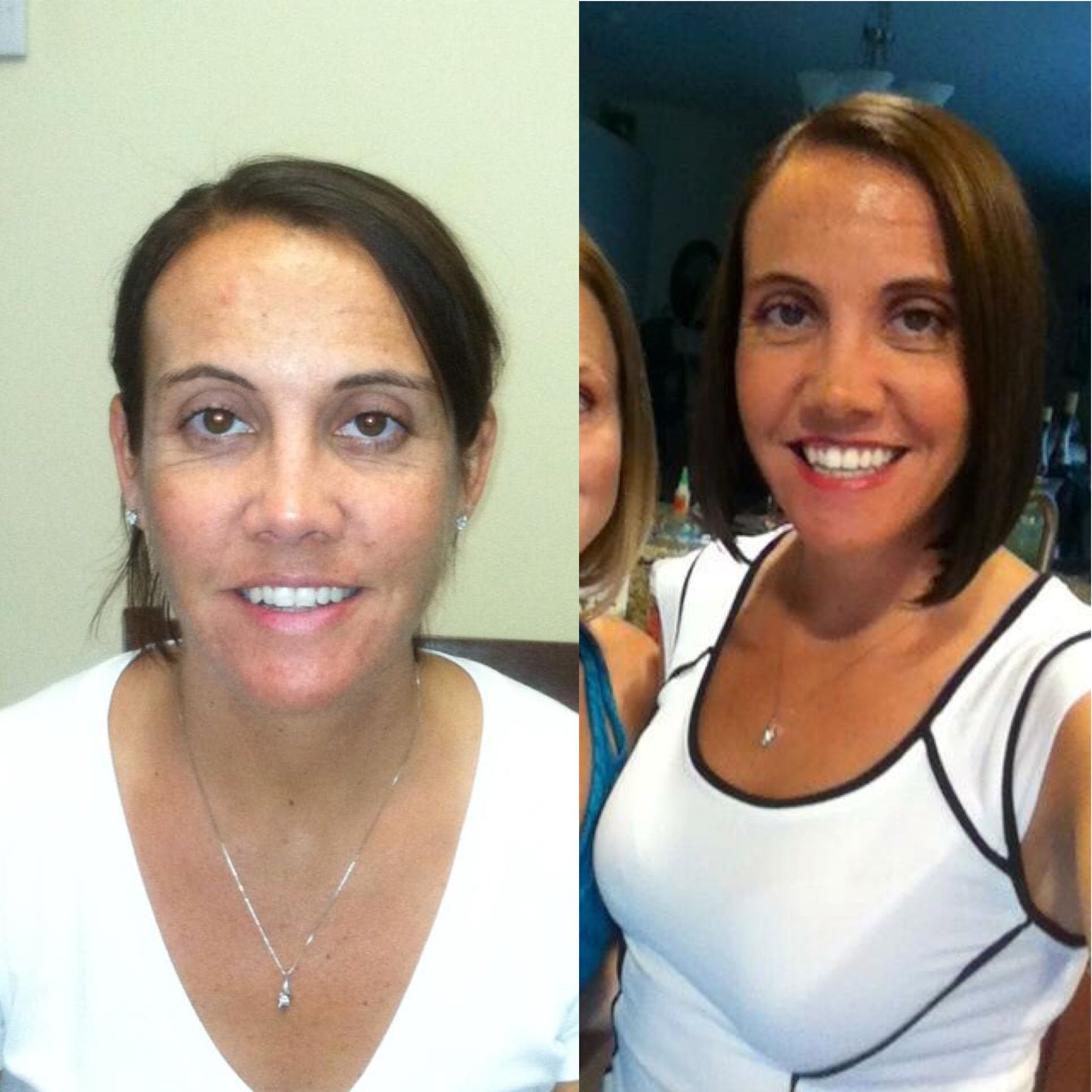 Dyan Gonzalez, she was so happy with her end result she was ok with posting her before! She looks great!