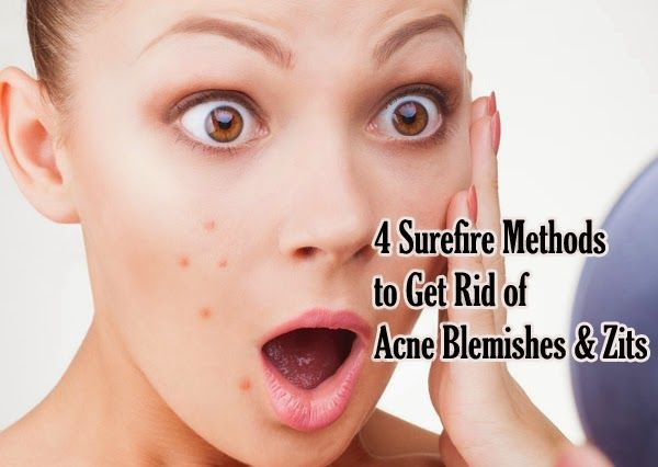 4 Surefire Methods To Get Rid Of Acne Blemishes & Zits