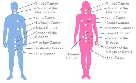 Skin check body diagram house wiring diagram symbols types of gastric cancer types of cancer skin cancer stomach rh pinterest com skin cancer body diagram for skin assessment body diagram of feet ccuart Choice Image