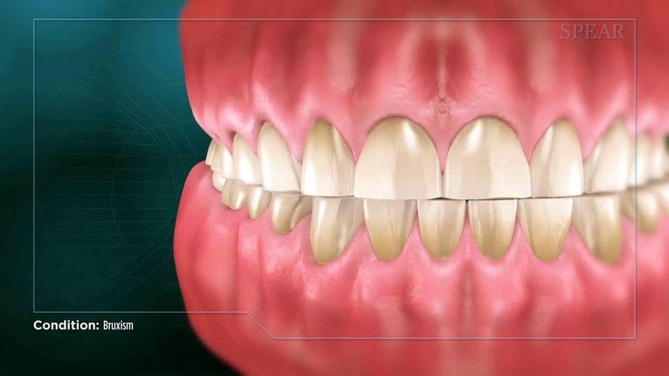 Pin by Ty.0official♥️ on ҍɾɑϲҽ ƒɑϲҽ Dental braces