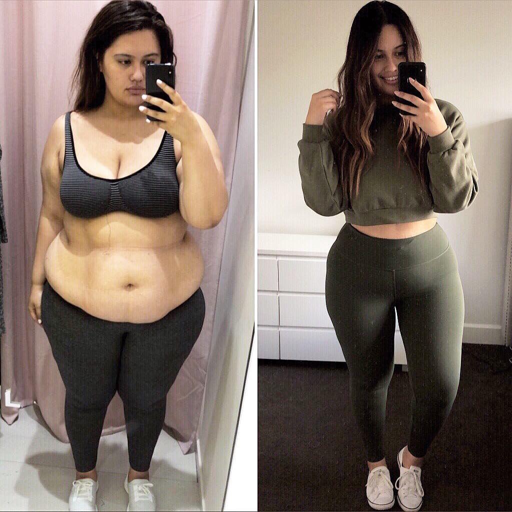 Brusttropfen aufgrund von Gewichtsverlust