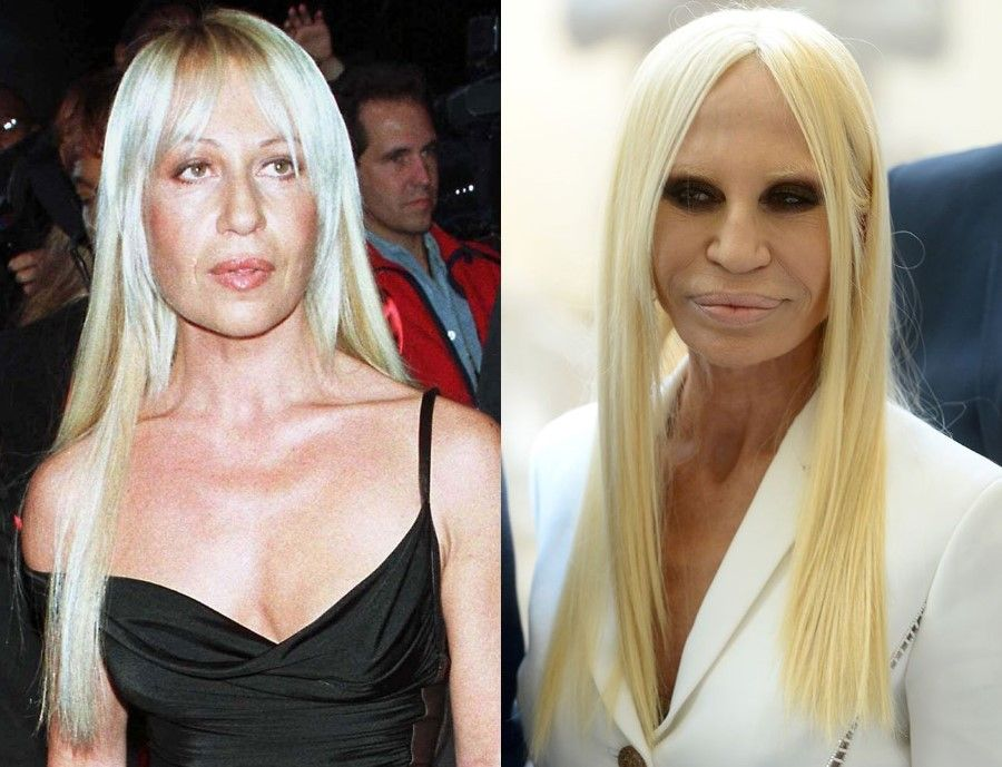 10 Before And After Celebrity Plastic Surgery Fails That ...
