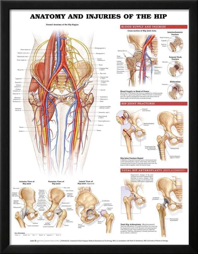 Anatomy and Injuries of the Hip Anatomical Chart Poster Print Lamina ...