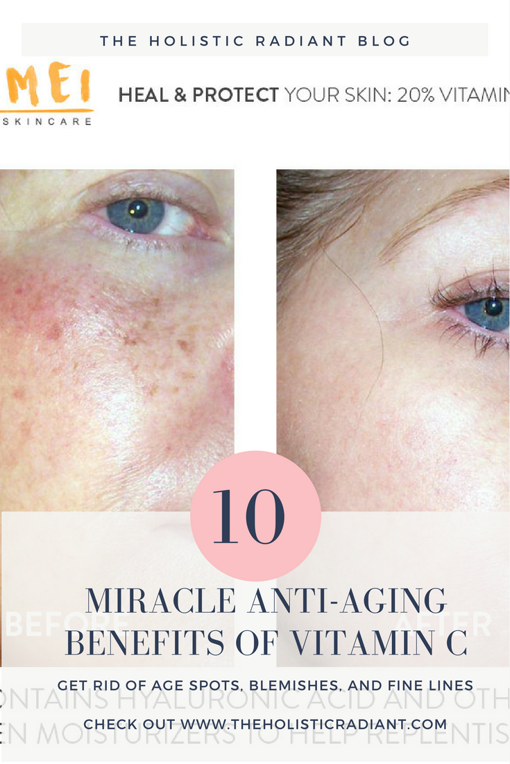 The Miracle Anti Aging Benefits Of Vitamin C For Younger Looking