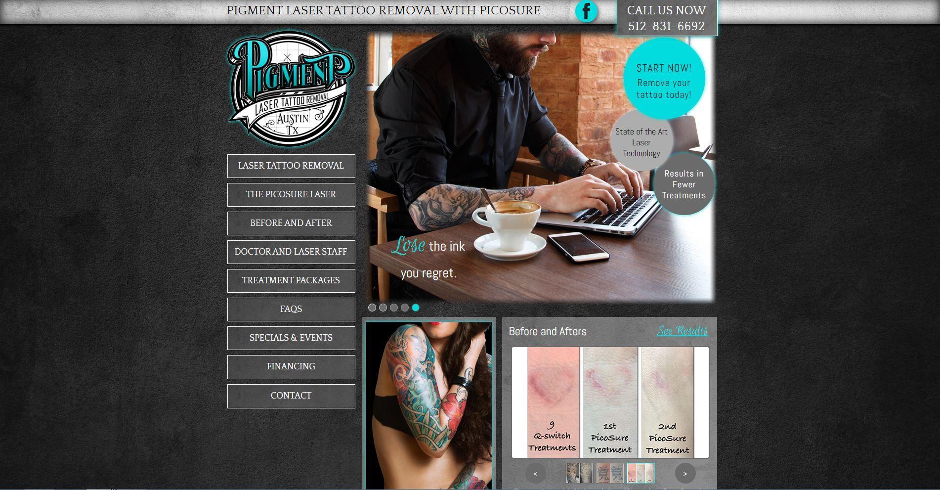 Pigment laser tattoo removal docweb designs http