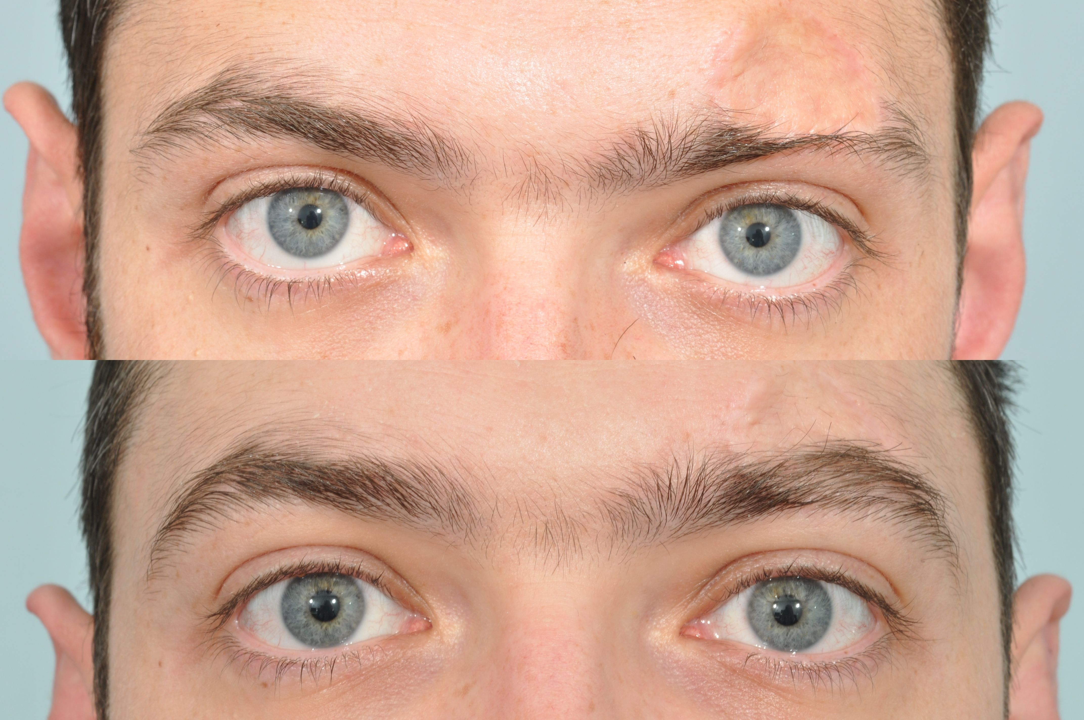 Eyebrow Transplantation Is A Surgical Procedure Intended To
