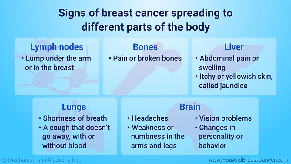 Symptoms Of Metastatic Breast Cancer Signs Cancer Might Have Spread