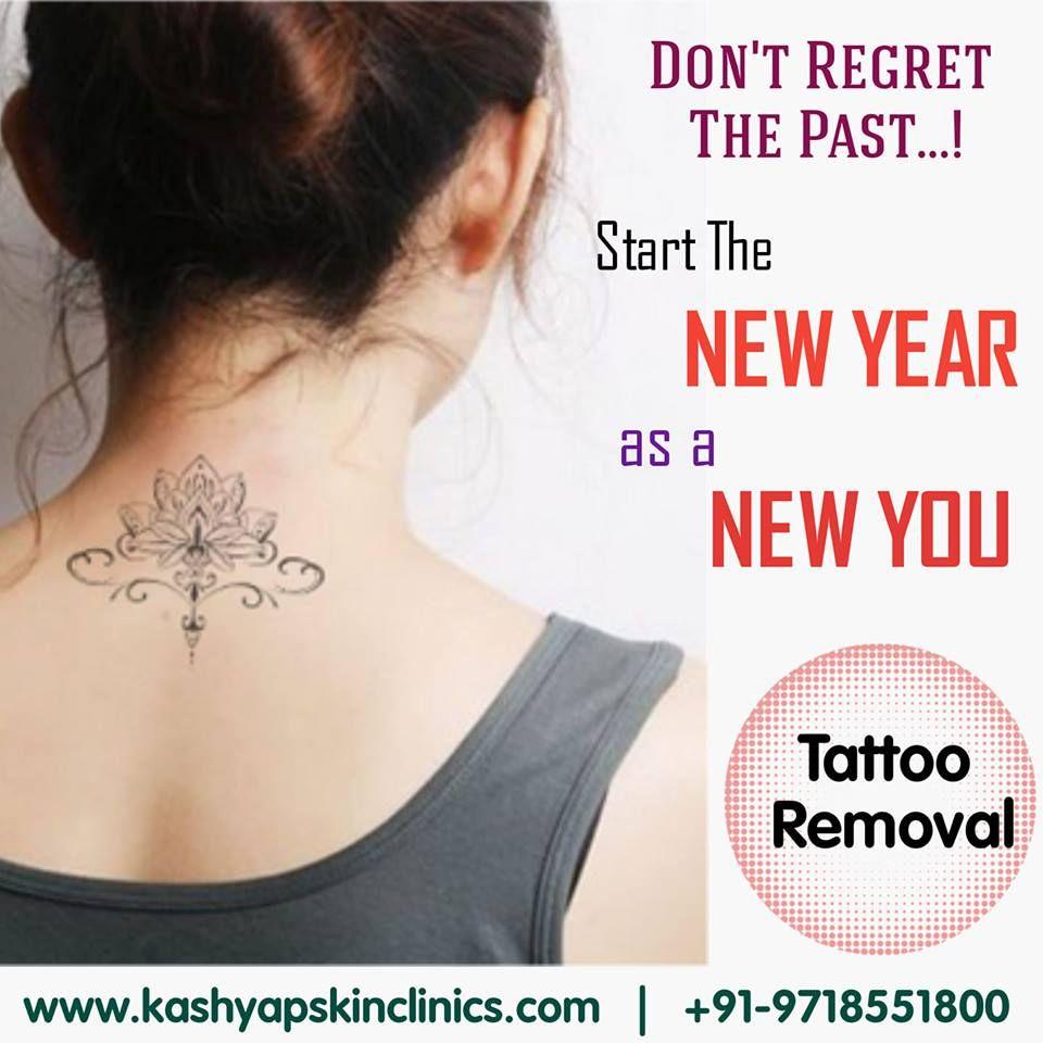 Laser tattoo removal in dwarka tattoo removal laser