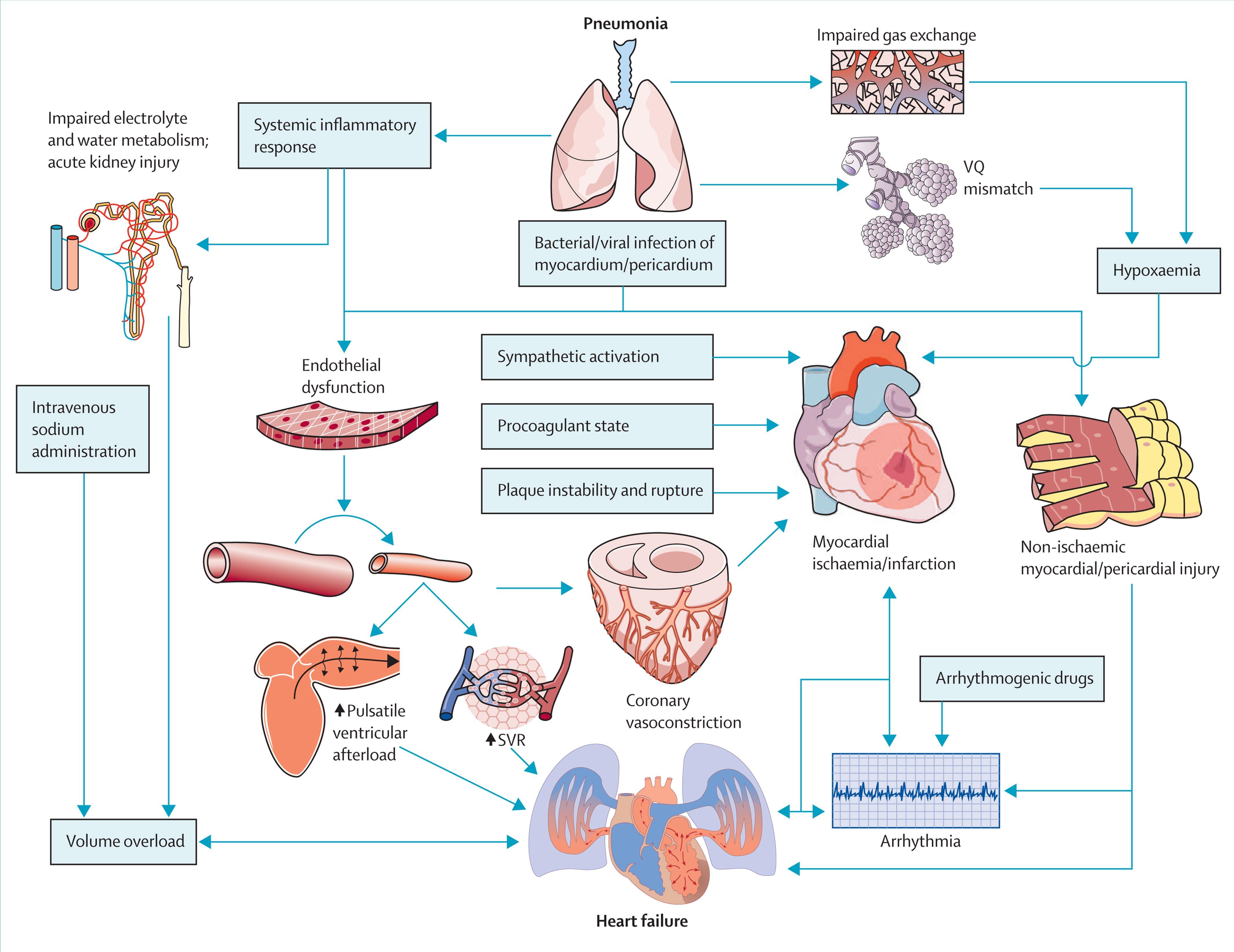 Acute Pneumonia And The Cardiovascular System