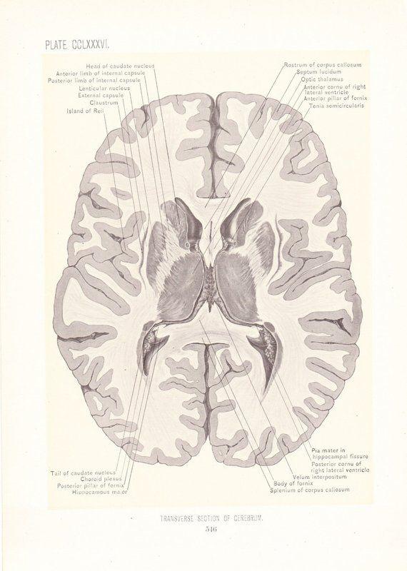 1899 Human Anatomy Print Transverse Section Of Brain Vintage