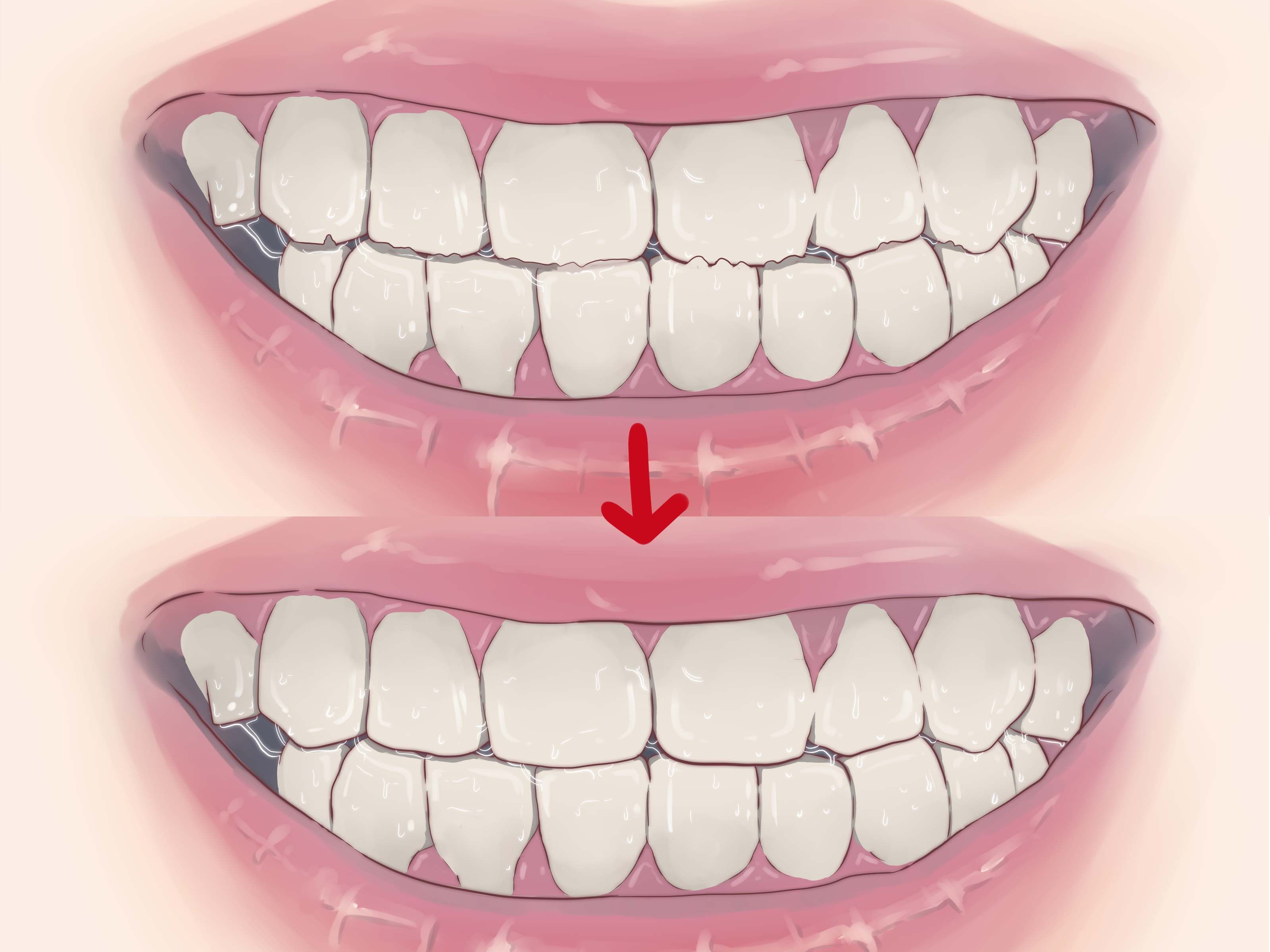 How To Get My Kid To Stop Grinding Teeth