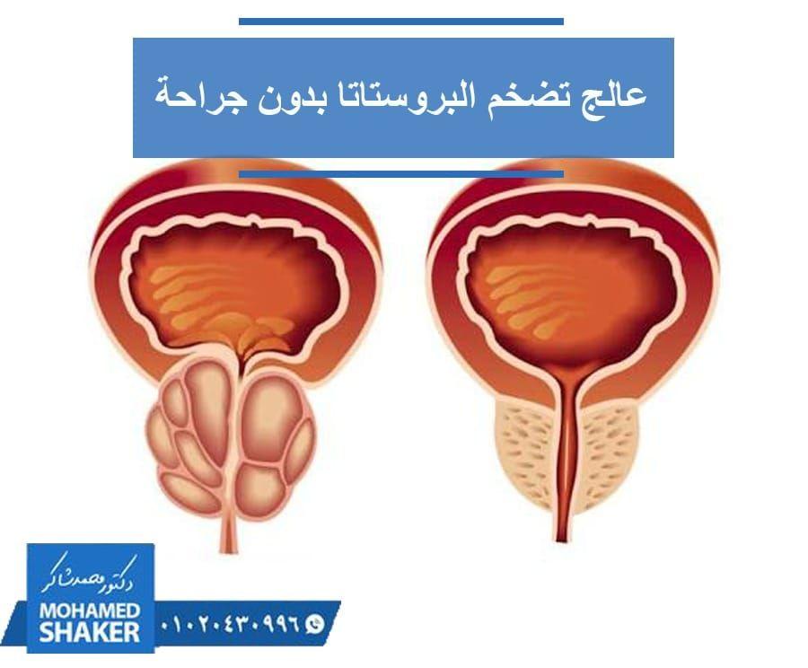 تخلص من تضخم البروستاتا في أفضل مكان يوفر لك أفضل خدمة صحية والعودة للمنزل في نفس اليوم حيث يقدم دكتور محمد شاكر علاجا لتضخم البروستاتا عن طر Shaker Prostate