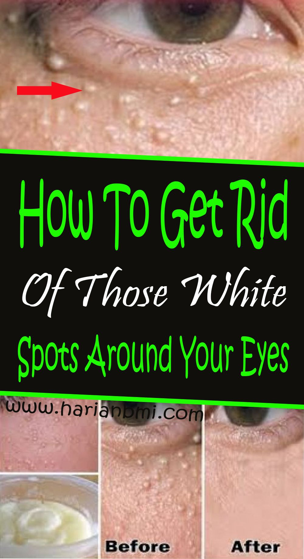 How to get rid of those white spots around your eyes