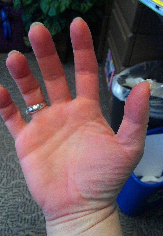 The Immense Benefits Of CBD For Raynaud's Syndrome