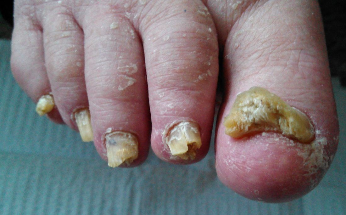 How Do You Get Rid Of Toenail Fungus You Can Get More
