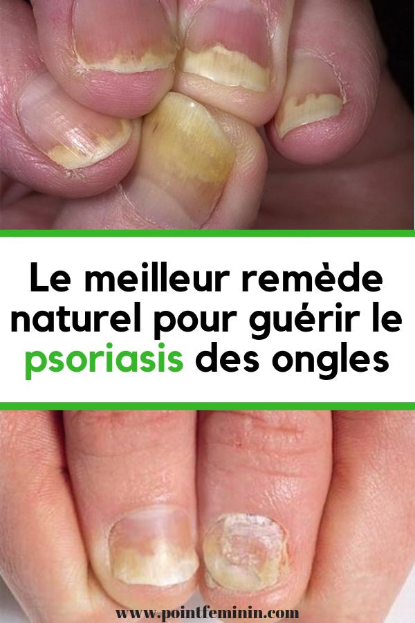 psoriasis pied traitement naturel