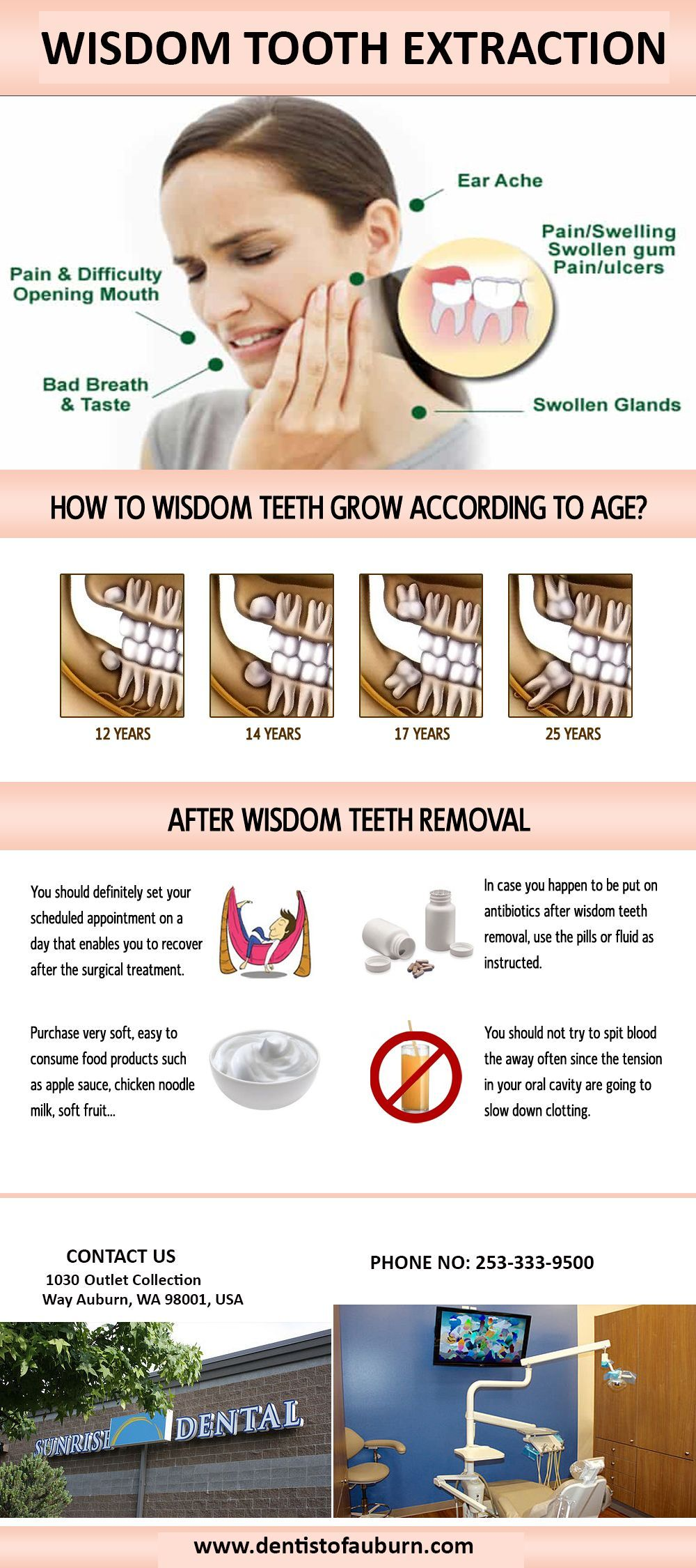 Irate Cosmetic Dentistry Before And After #teethwhitening  #DentalHygienistAttire   Wisdom tooth extraction, Wisdom teeth removal, Wisdom  teeth