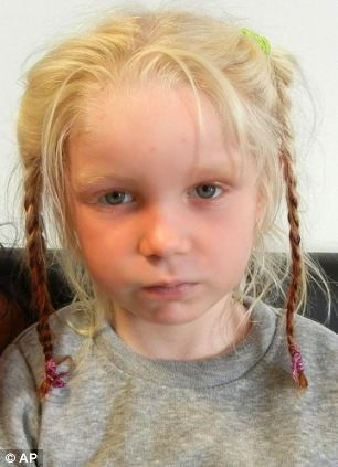 Albino With Blue Eyes Blonde Hair Google Search