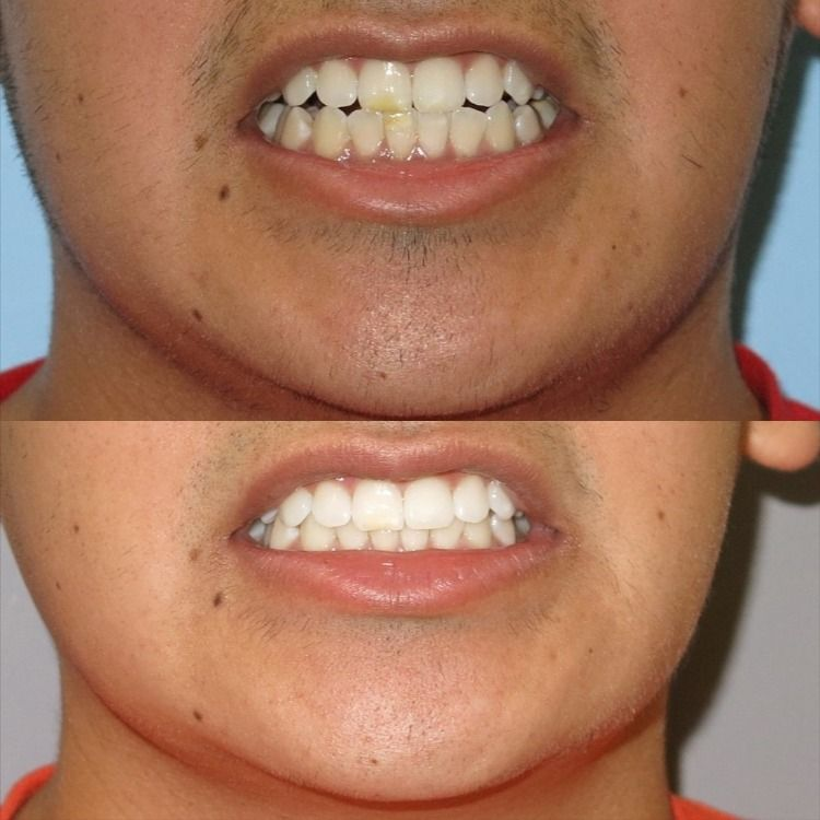 How do i get rid of the brown spots on my teeth